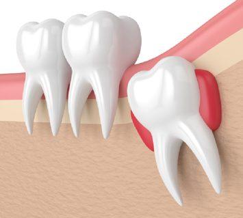 Treatment - Cambridge Street Dental